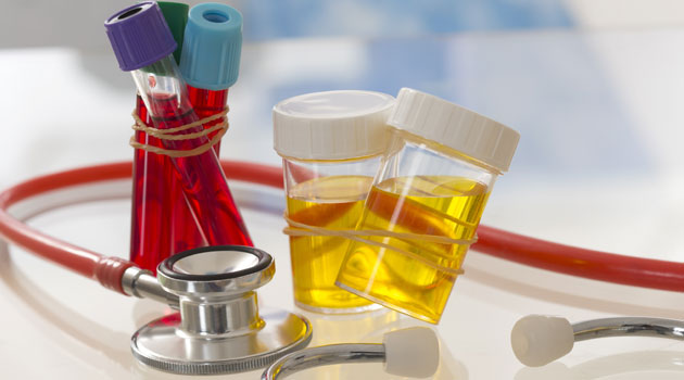 Urine and blood samples alongside a stethoscope